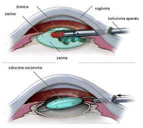Usunięcie zaćmy połączone z wszczepieniem sztucznej soczewki do oka